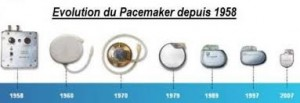 Evolution taille pacemaker