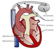 implantation pacemaker